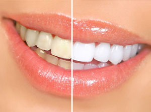 cosmetic-dentistry-1-res